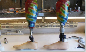Preferred-Orthotics-and-Prosthetic-Services-16