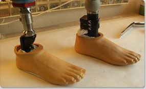 Preferred-Orthotics-and-Prosthetic-Services-17
