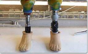 Preferred-Orthotics-and-Prosthetic-Services