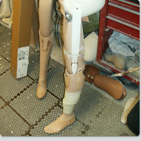 Preferred-Orthotics-and-Prosthetic-Services-30