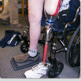 Preferred-Orthotics-and-Prosthetic-Services-36